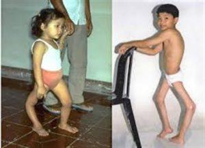 Полиомиелит у детей. Первые признаки, быстрое лечение и вакцины