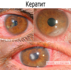 Почему болят глаза: возможные причины и алгоритм действий при появлении симптомов