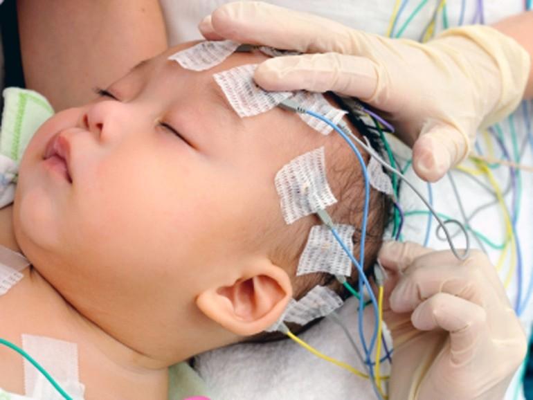 Сделать ЭЭГ (Электроэнцефалографию) ребенку