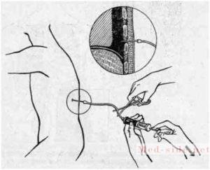 Что такое гемоторакс, основные причины выхода крови в плевральную полость. Опасности и способы купирования неотложного состояния