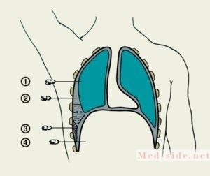 Достоверный способ определения наличия жидкости и гноя в плевральной полости проба Петрова или плевральная пункция