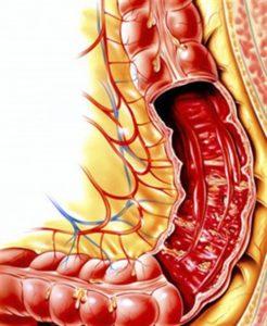 Причины дизентерии и способы распространения инфекции. Коментарии врача