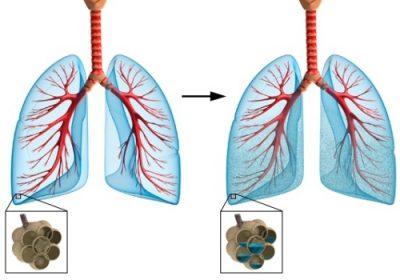 Лечение отека легких в стационаре thumbnail