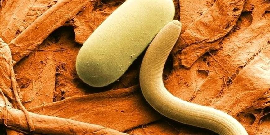 В теле человека трематоды ищут место локации