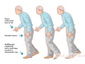 Все причины тремора и особо опасные симптомы, появляющиеся при дрожании рук