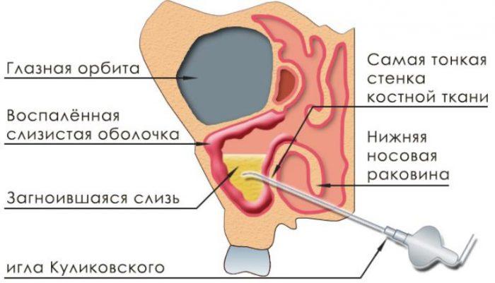 Пункция гайморовых пазух