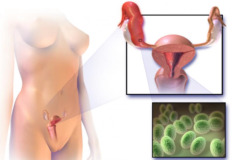 Воспалительные процессы внутренних органов