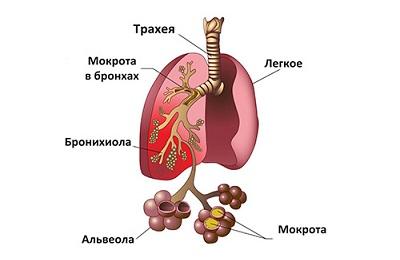 Застойная пневмония
