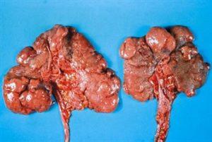 Особенности пиелонефрита у ребёнка. С чего начинается болезнь и как её лечить
