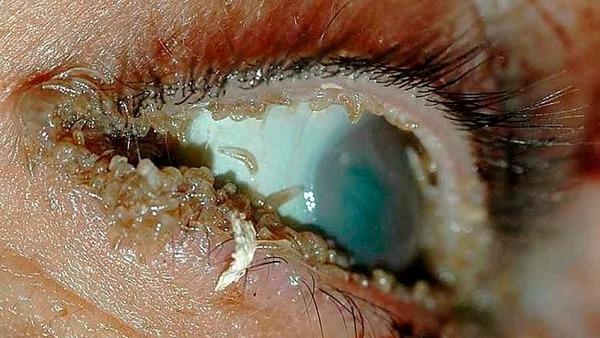 Заражение глаза - офтальмомиаз
