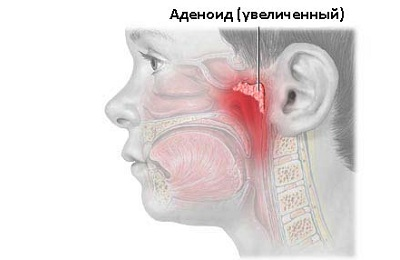 Воспаленные миндалины
