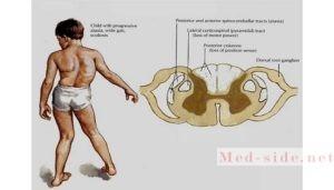 Генетическая патология атаксия Фридрейха: план симптоматической терапии