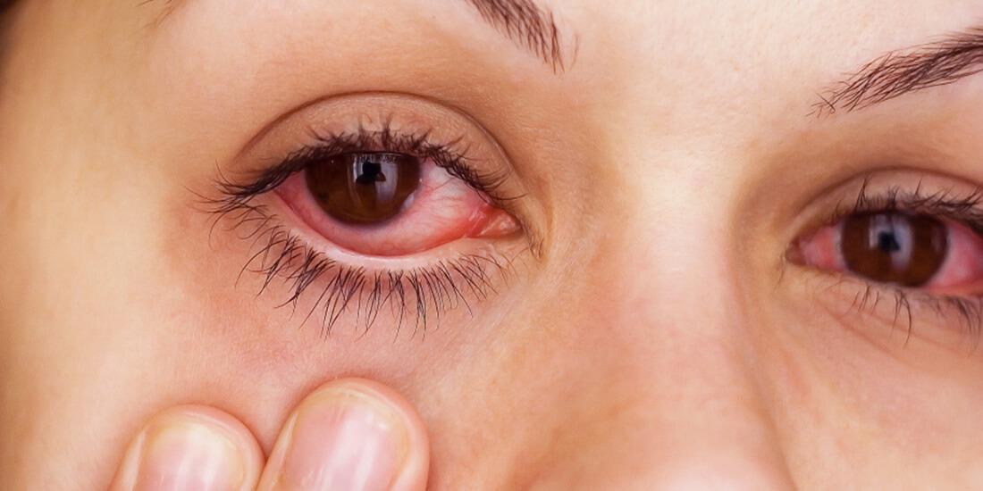 Больные глаза