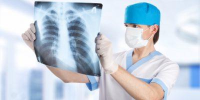 Лечение цирроза легкого