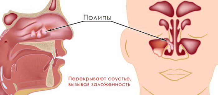 Полипозный синусит