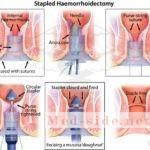 Подробно только о работающих методиках лечения геморроя на разных стадиях болезни, советы врачей-проктологов