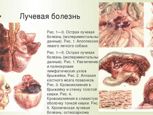 Клинические проявления острой лучевой болезни у людей подвергшихся облучению. Эффективное лечение