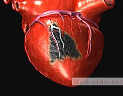 Стадии инфаркта и клинические проявления. Реабилитация и меню способы пошагового восстановления