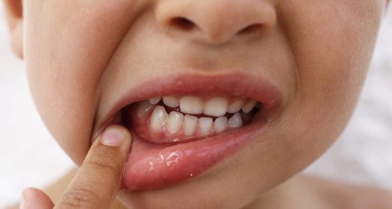 Симптомы и лечение гингивита у детей