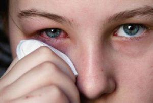 Аденовирусная инфекция у взрослых: на что обратить внимание и как не заразиться