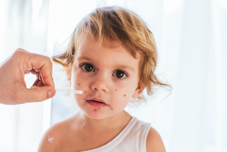 Как лечить ветрянку у детей?